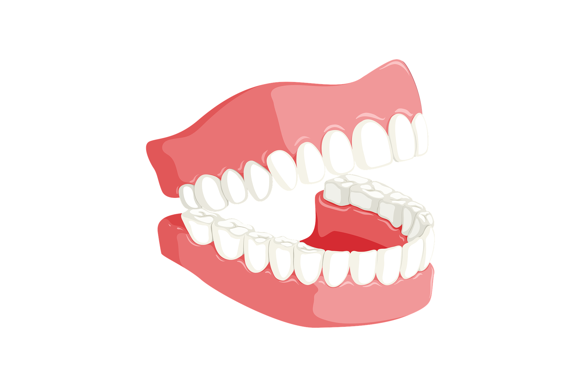 Tooth Loss and Available Solutions